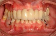restoration of a smile that was damaged by periodontal